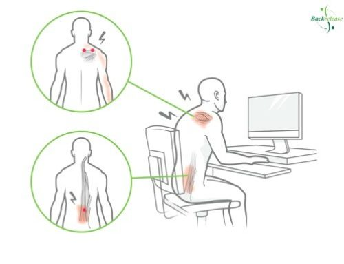 What are Trigger Points?