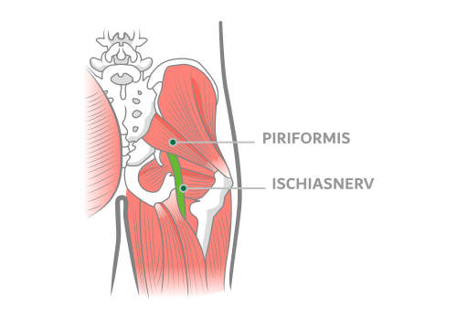 Piriformis Syndrom