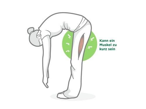 Muskelverkürzung